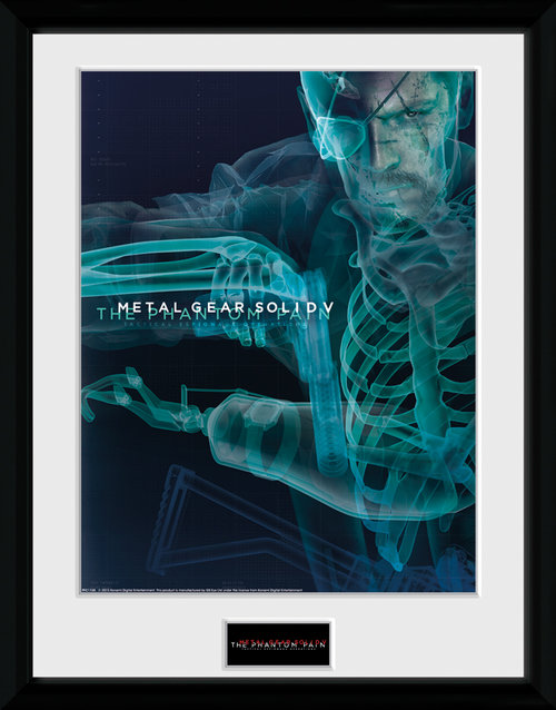 Metal Gear Solid V X-Ray Framed Collector Print